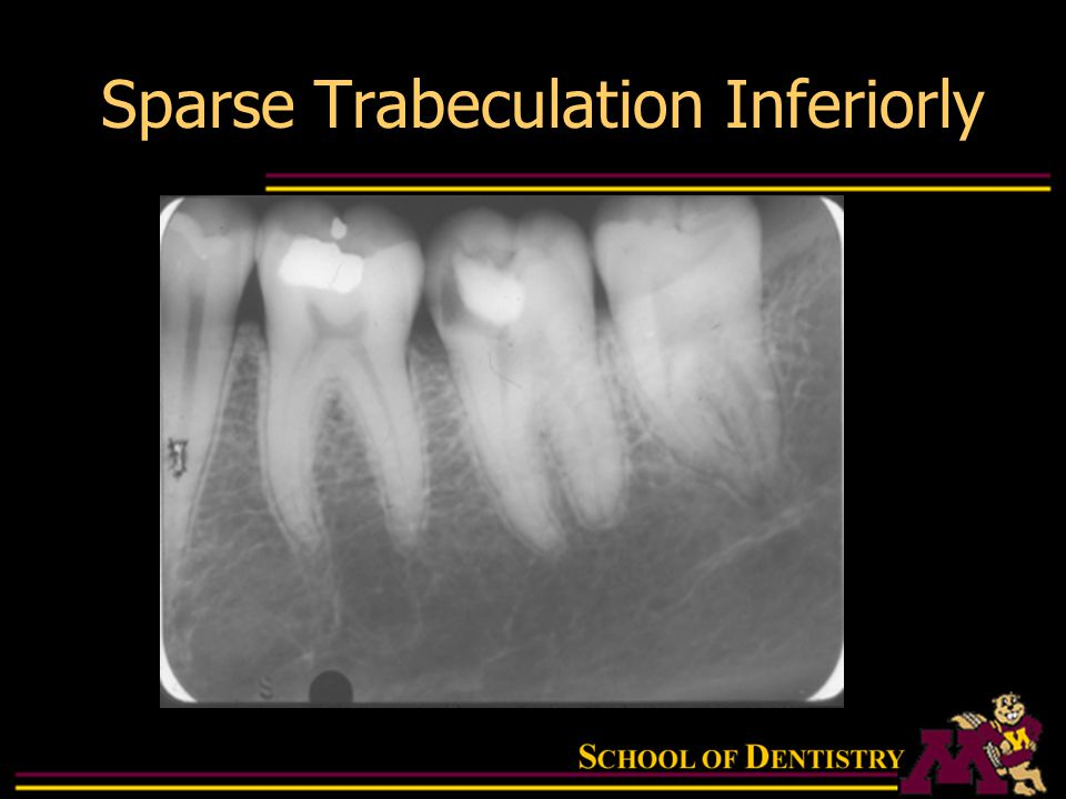 Intraoral Radiographic Anatomy