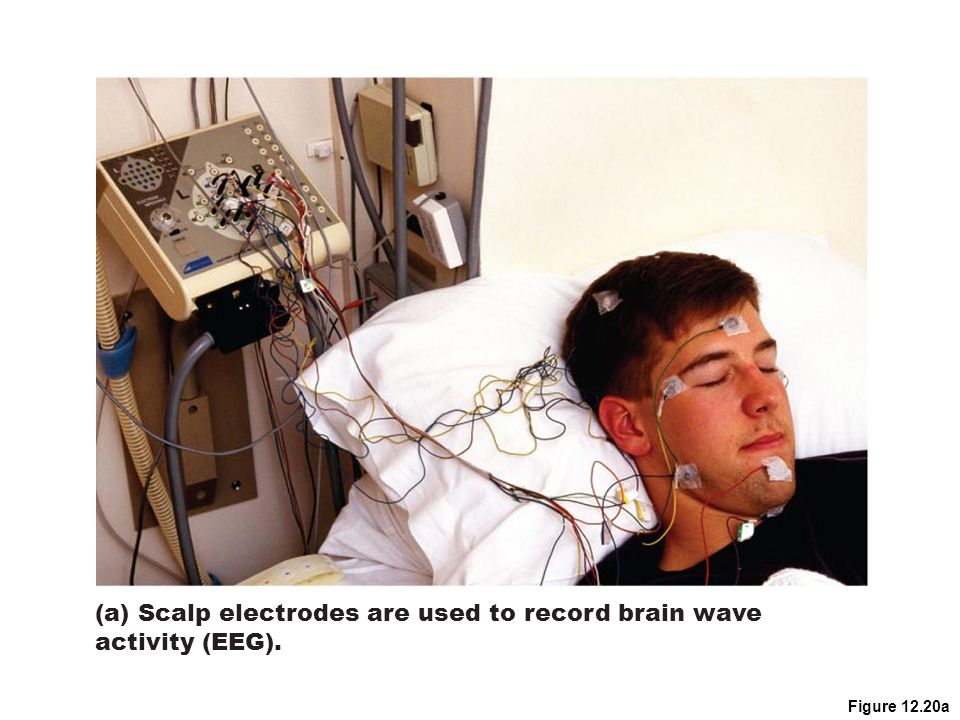 (a) Scalp electrodes are used to record brain wave activity (EEG).