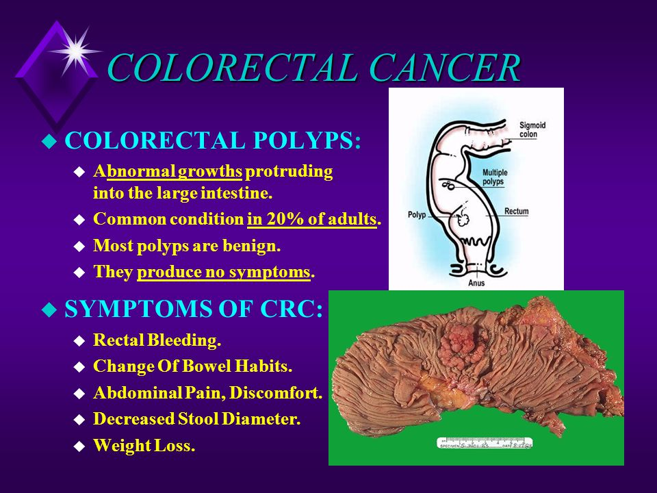 Colorectal Cancer Epidemiology Crc Is The 3rd Cancer