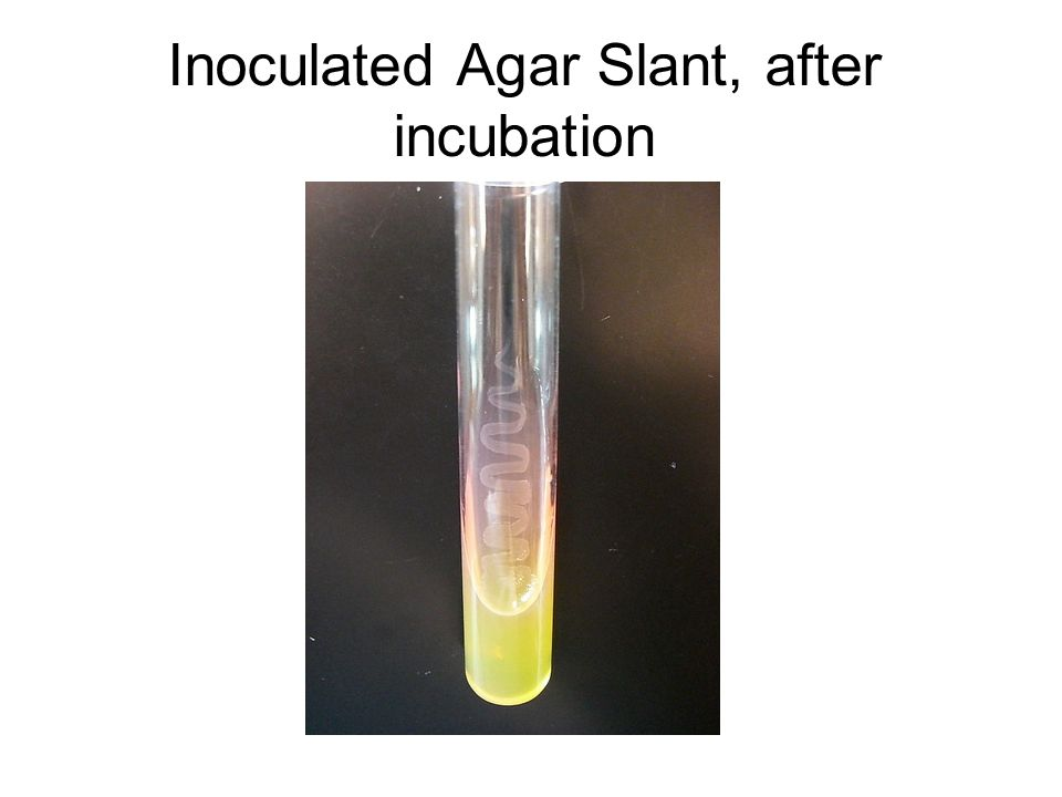 Inoculated Agar Slant, after incubation