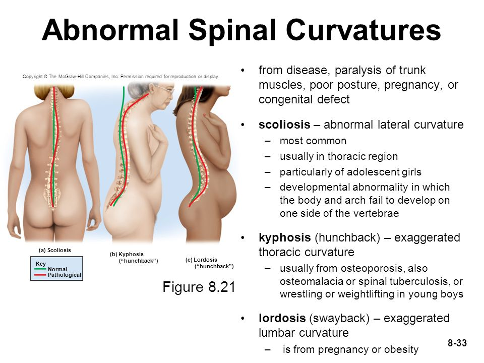 Abnormal Spinal Curvatures