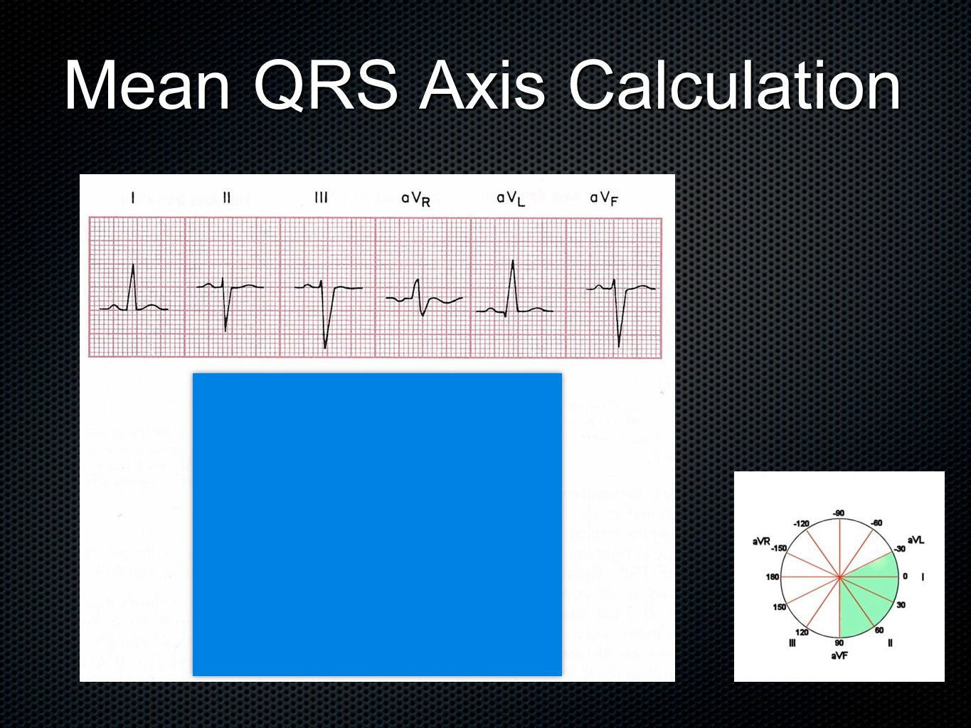 Mean QRS Axis Calculation