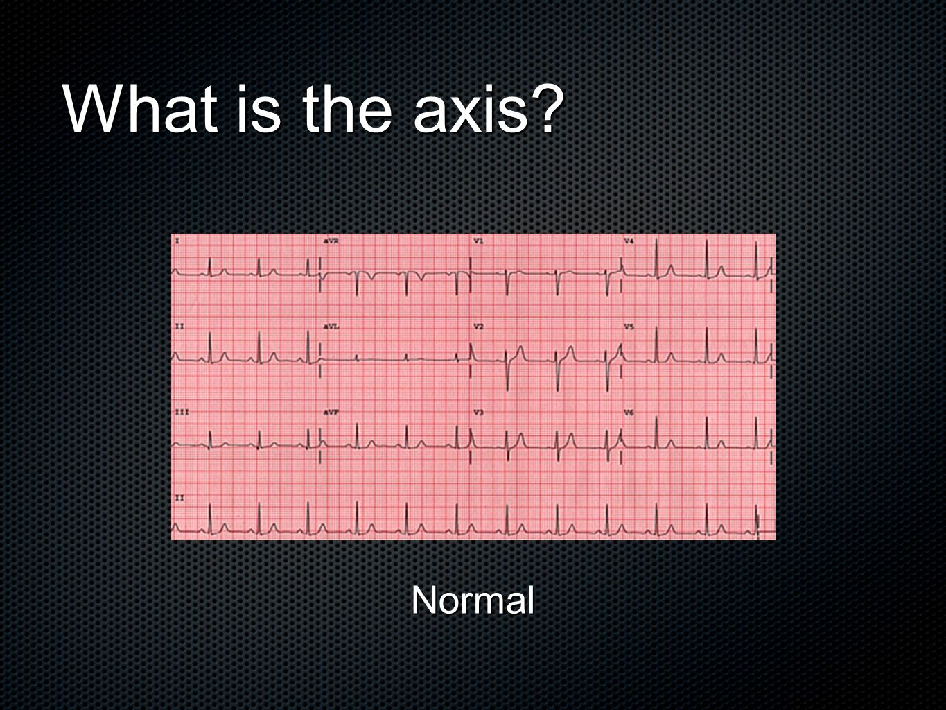 What is the axis Normal