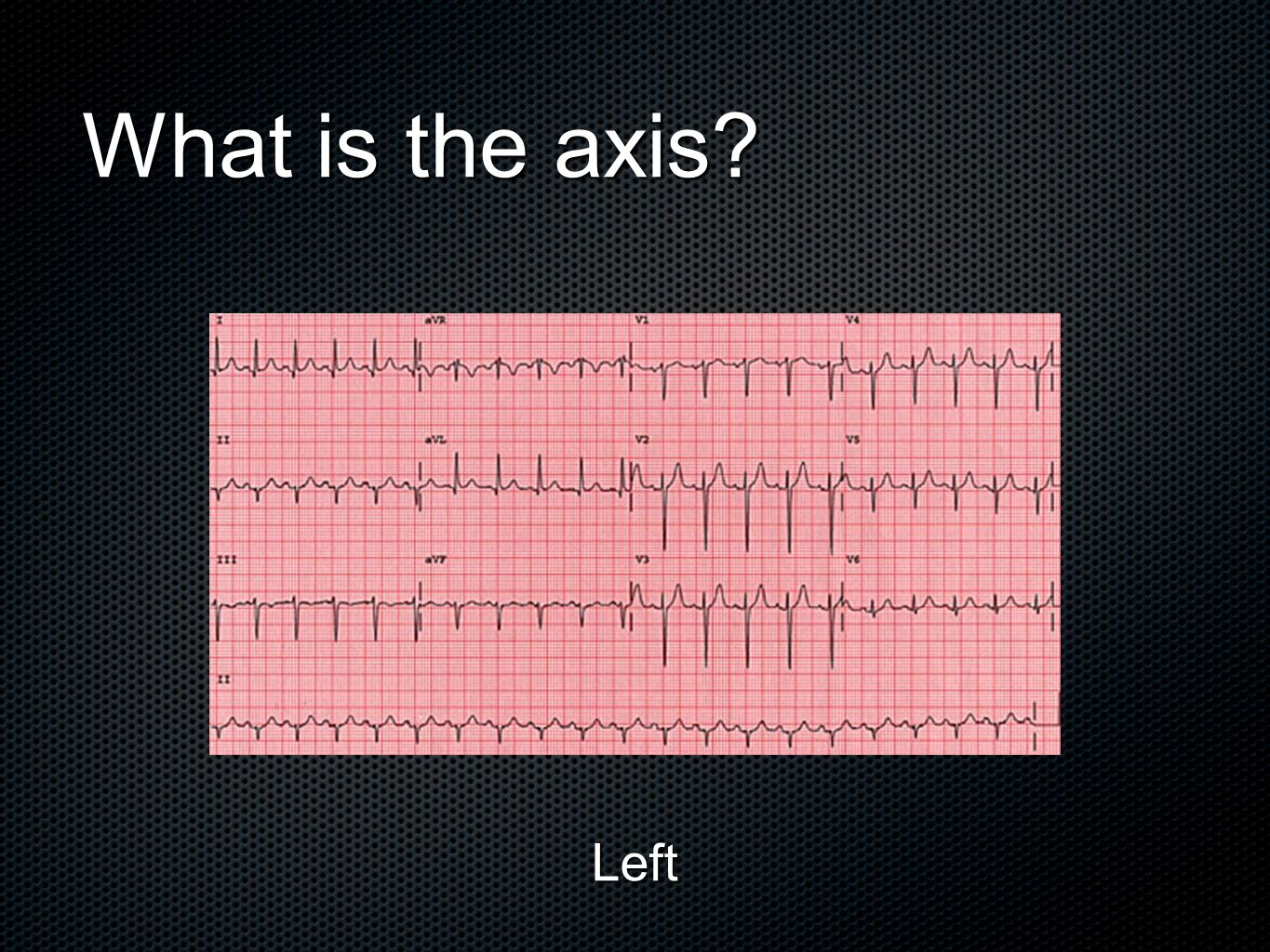 What is the axis Left
