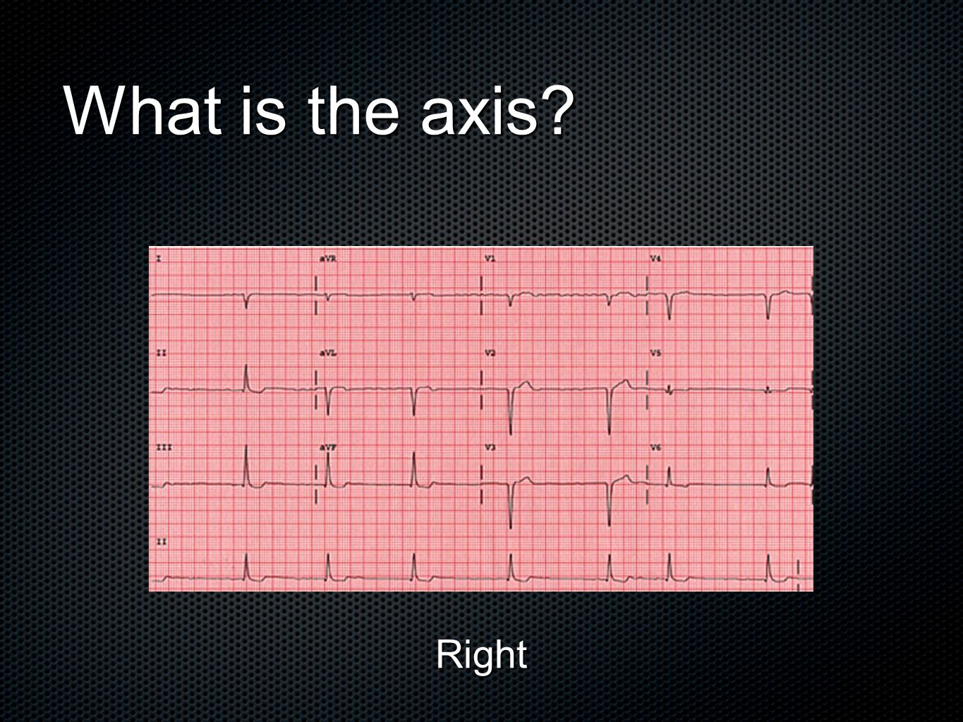 What is the axis Right