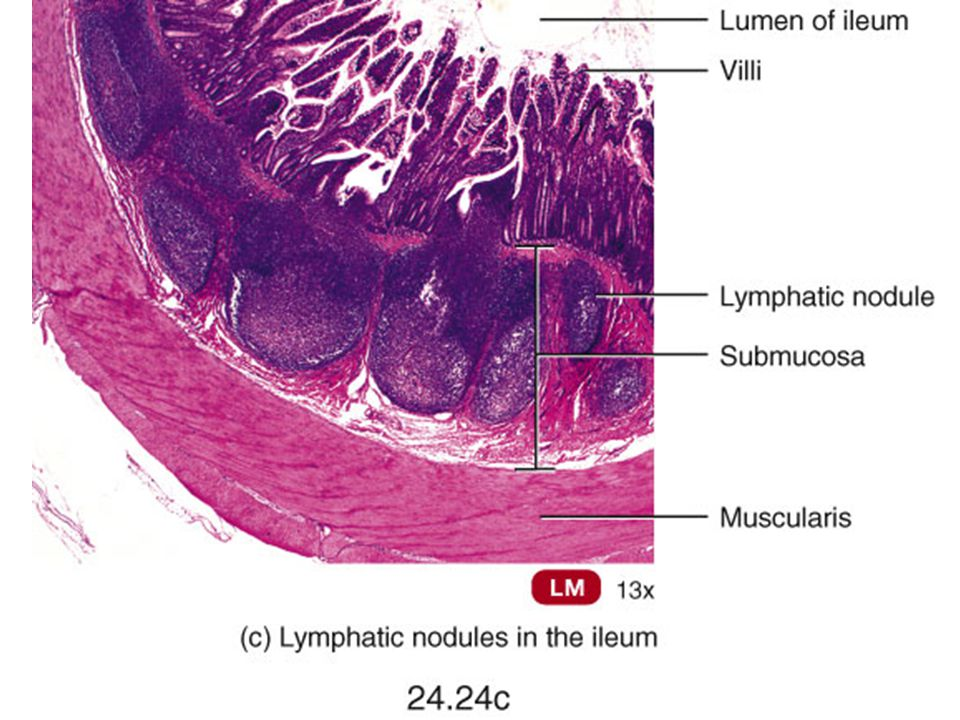Peyer's patches in the ileum