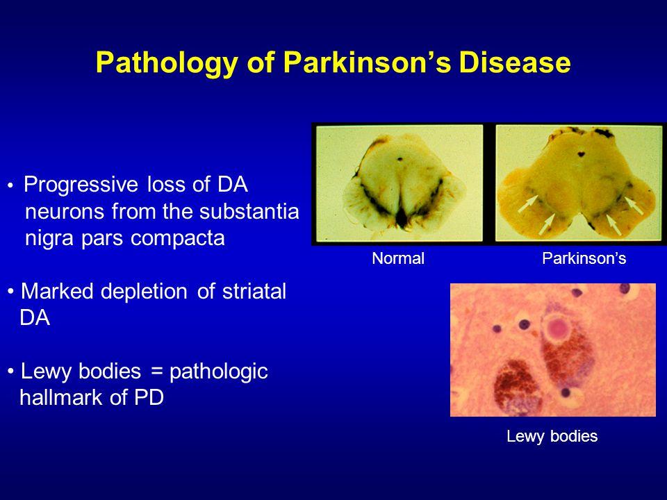 Neurontin For Parkinsons Disease