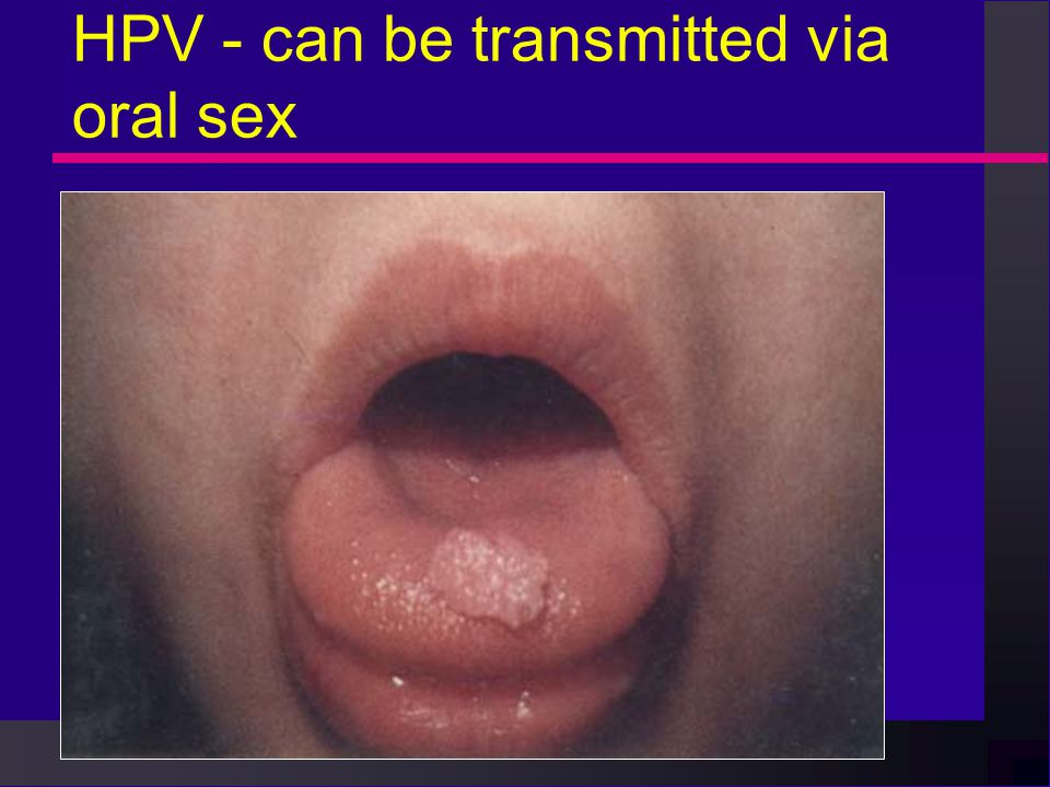 can oral sex cause bladder infections