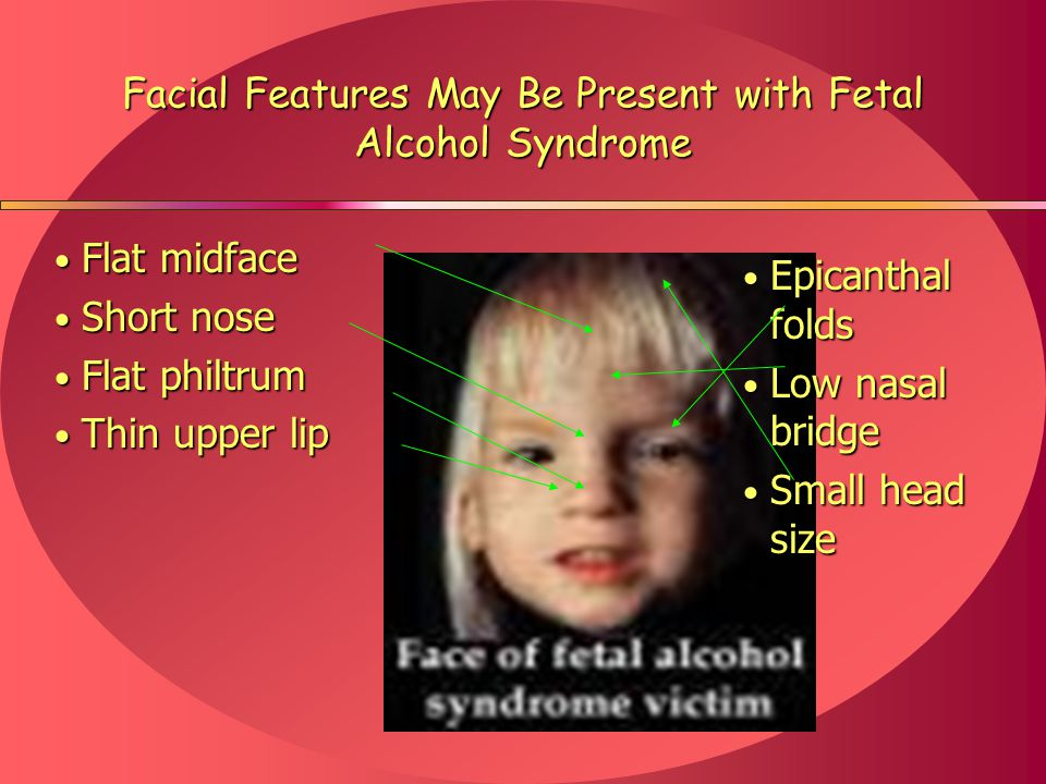 fetal alcohol syndrome outline Free fetal alcohol syndrome papers, essays, and research papers.