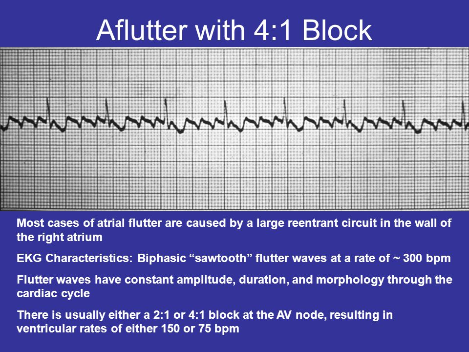 Pictures of Atrial Flutter Sawtooth Ecg - #rock-cafe