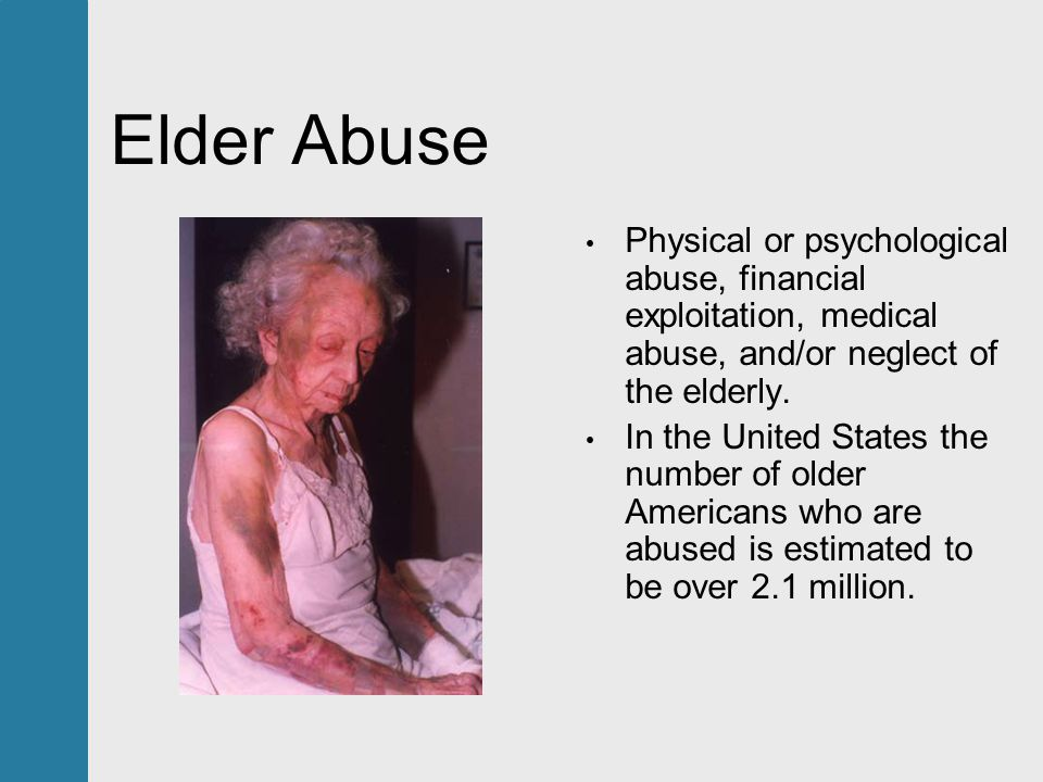 neglect of the elderly Population will be elderly [1] with this trend comes a segment of the popula- tion  that is at risk for abuse, neglect, or self-neglect [2] we are challenged to be.