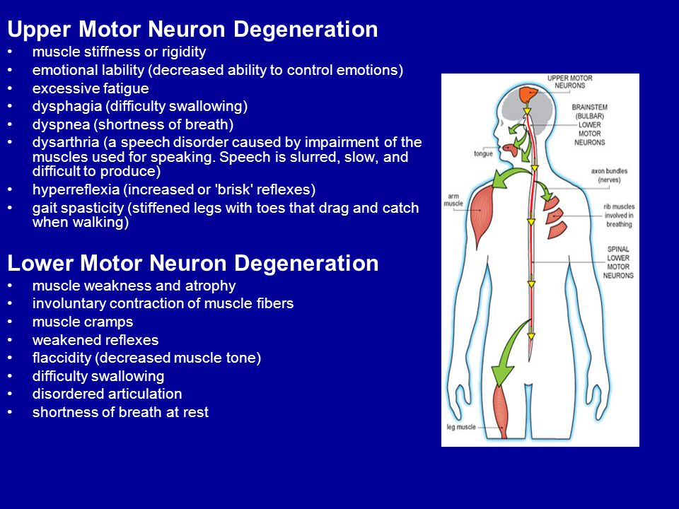 Guillain barre myasthenia gravis and als ppt video for Upper motor neuron syndrome symptoms