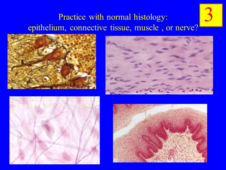 neuralgia is a connective tissue biology essay Connective tissues connective tissue has a large variety of functions in the body.