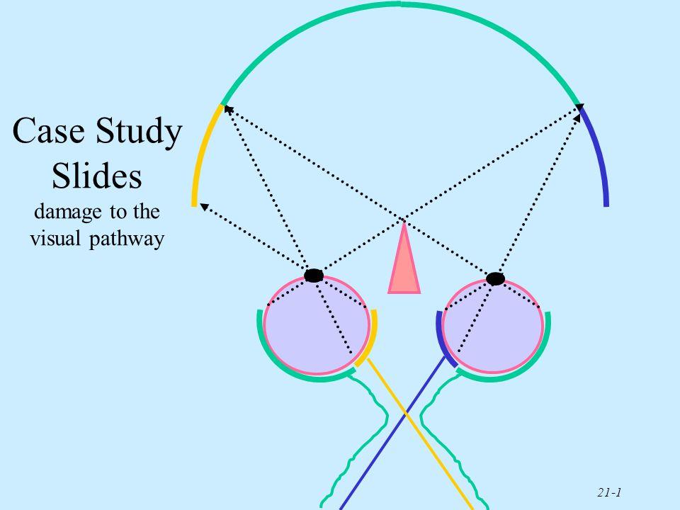 visual pathway - Vatoz.atozdevelopment.co