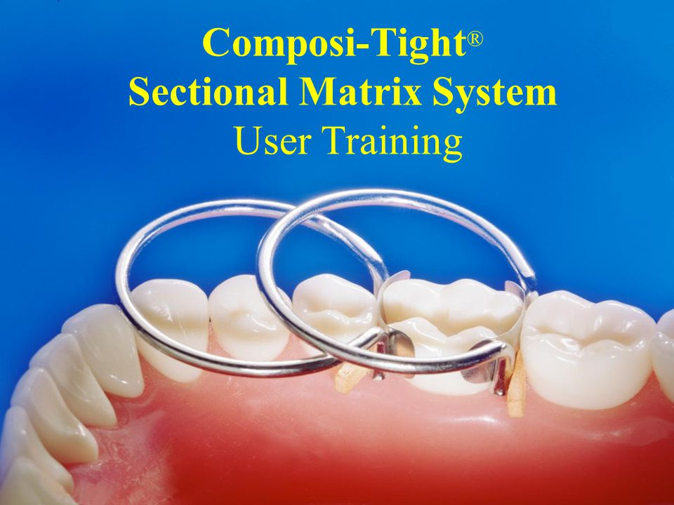 Composi Tight 174 Sectional Matrix System User Training Ppt