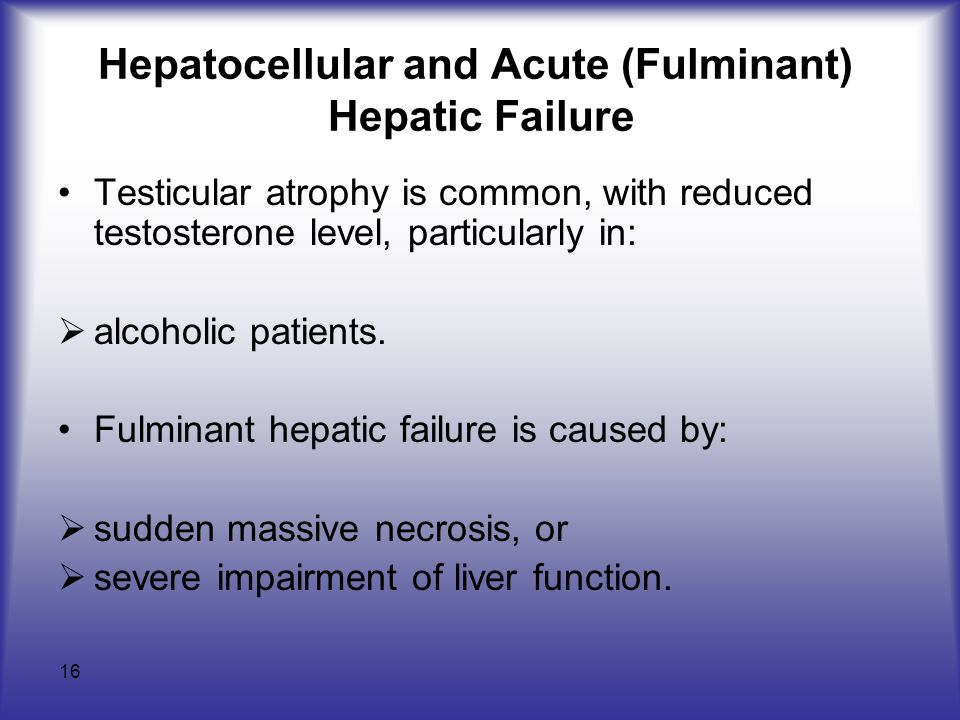 Hepatocellular and Acute (Fulminant) Hepatic Failure