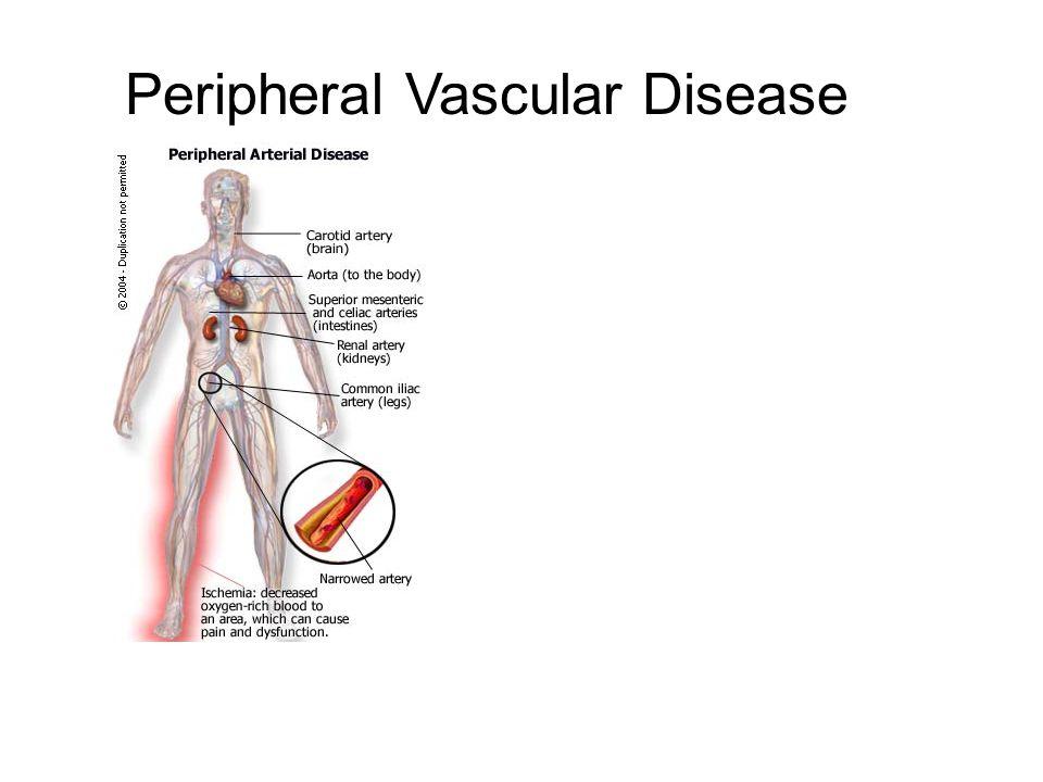 Peripheral vascular disease.