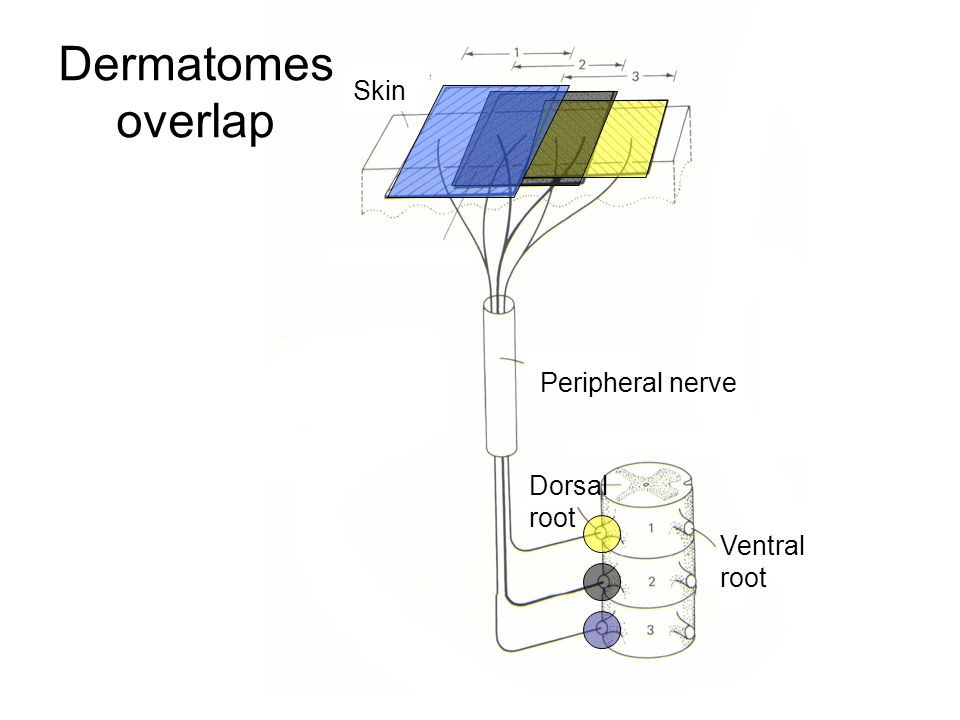 Dermatomes overlap Skin Peripheral nerve Dorsal root Ventral root ...