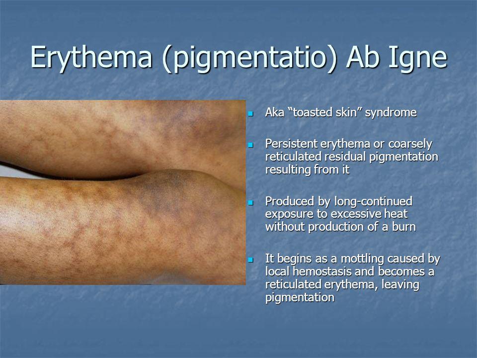 100+ Treatment For Mottled Skin – yasminroohi