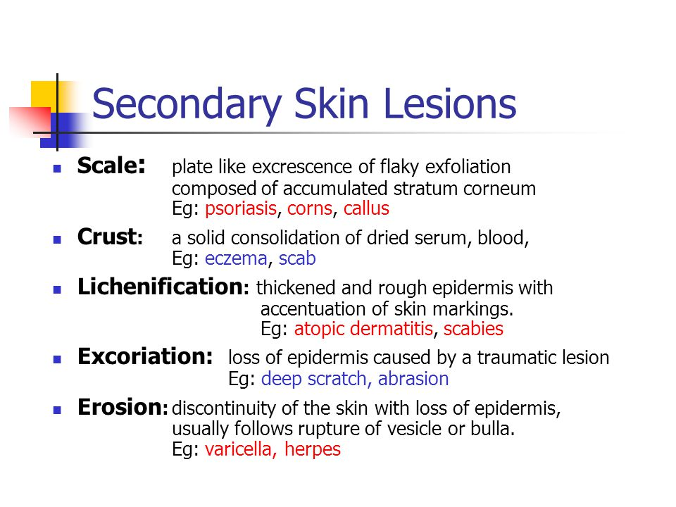 skin atrophy caused by steroids
