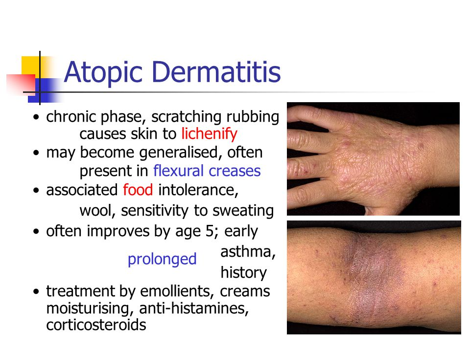 Non-Infectious Skin Diseases - ppt video online download