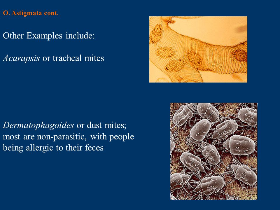 Other Examples include: Acarapsis or tracheal mites