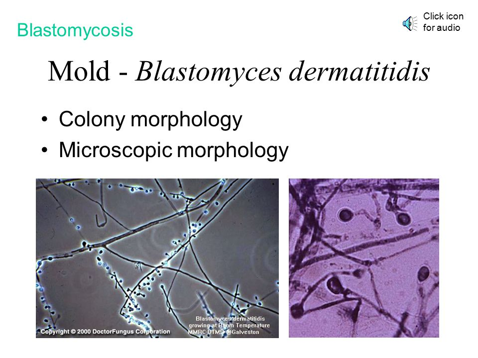Mold - Blastomyces dermatitidis