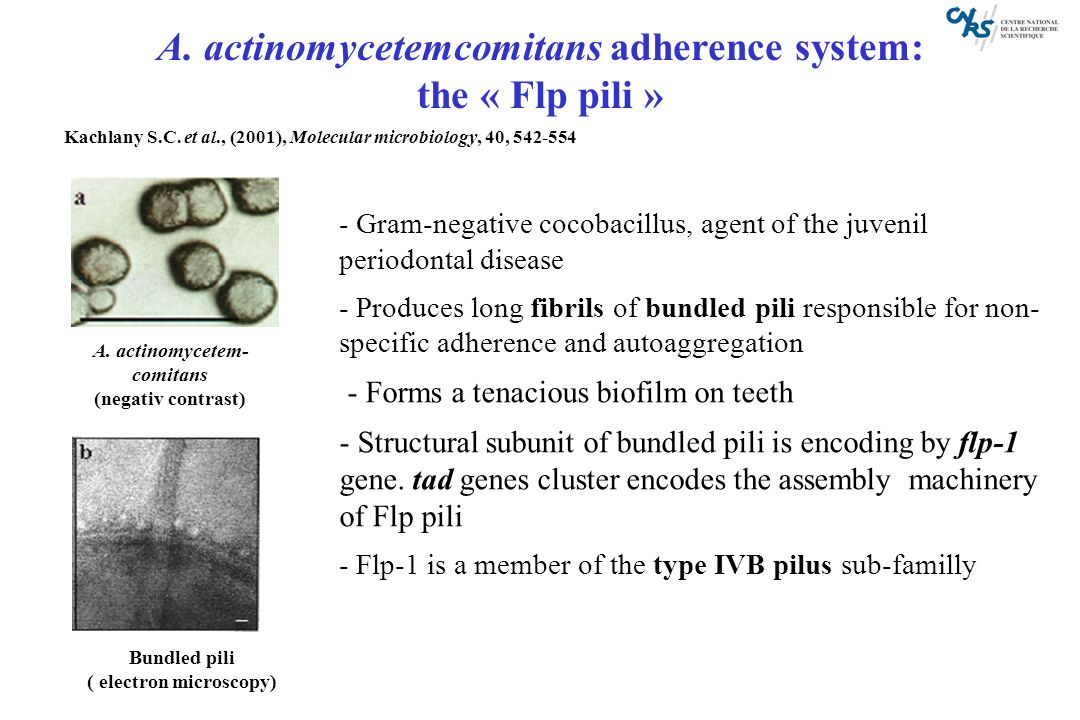 A. actinomycetemcomitans adherence system: ( electron microscopy)