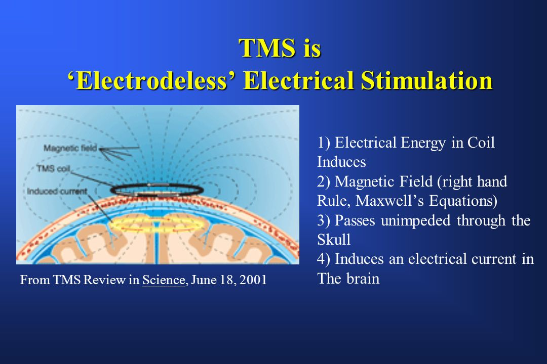 Electric Current Locator : Repetitive transcranial magnetic stimulation rtms ppt