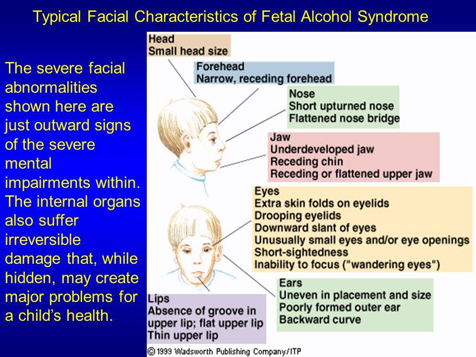 characteristics of alcoholism