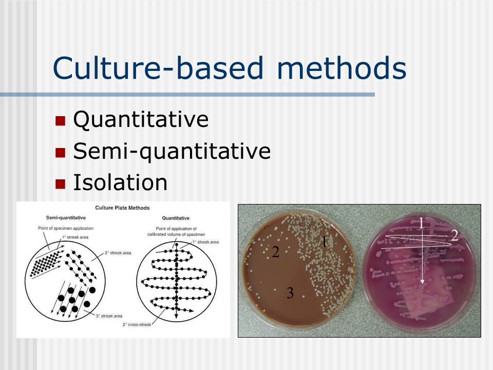 id core curriculum urine cultures ppt video online download
