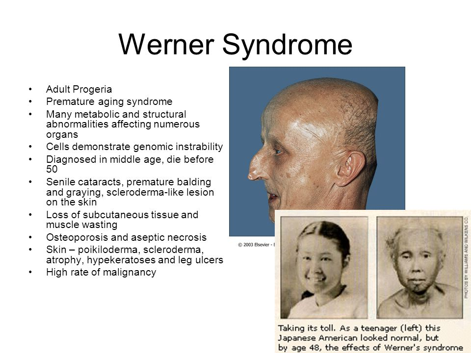 Werner Syndrome Adult Progeria Premature aging syndrome