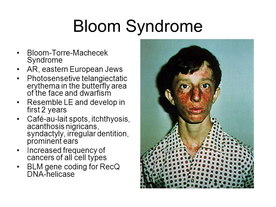 Bloom Syndrome Bloom-Torre-Machecek Syndrome AR, eastern European Jews