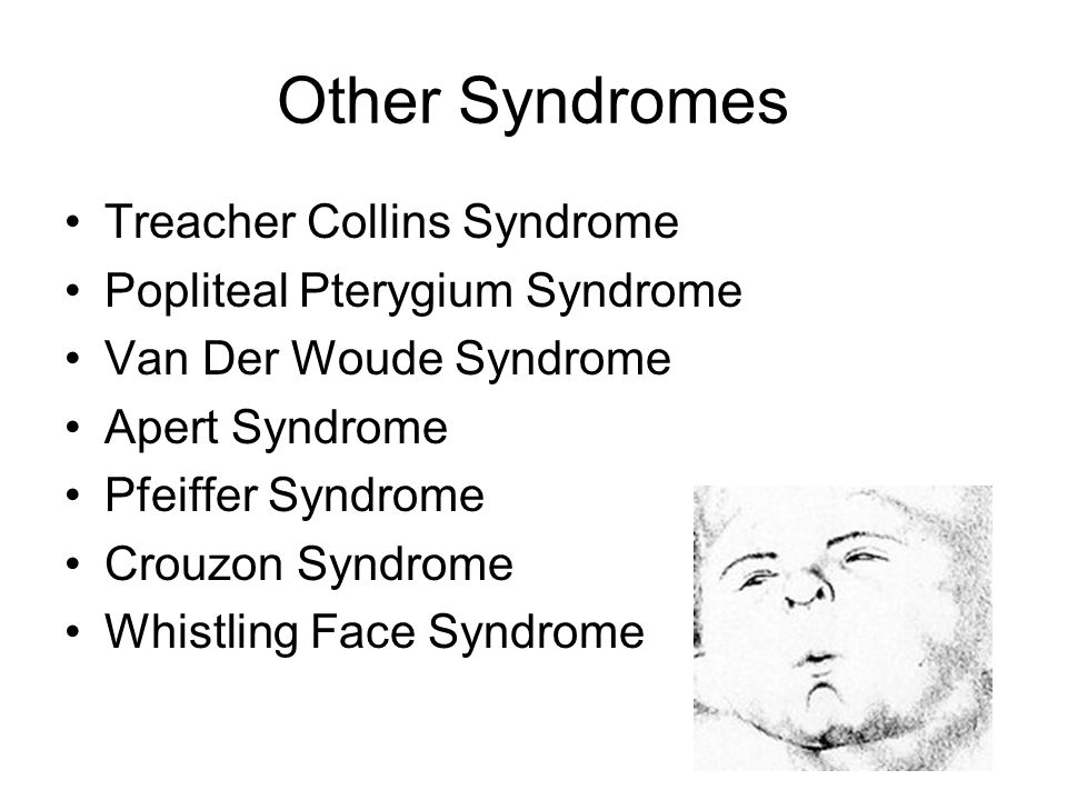 Other Syndromes Treacher Collins Syndrome Popliteal Pterygium Syndrome