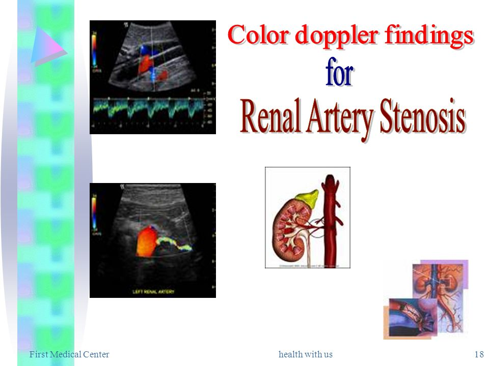 Color doppler findings