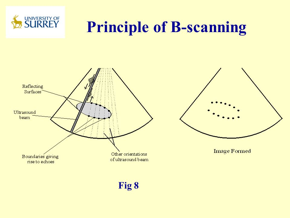 Principle of B-scanning