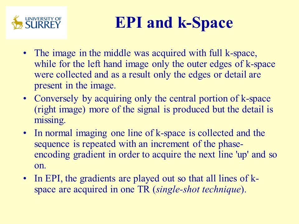 PH3-MI April 17, 2017. EPI and k-Space.