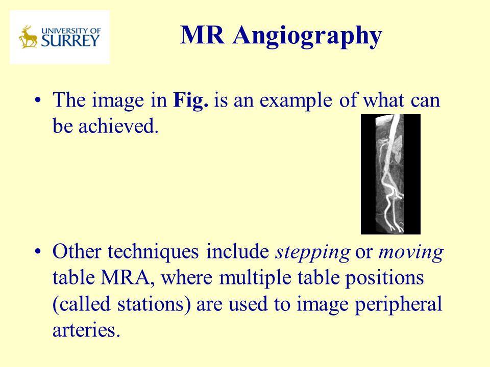 PH3-MI April 17, 2017. MR Angiography. The image in Fig. is an example of what can be achieved.