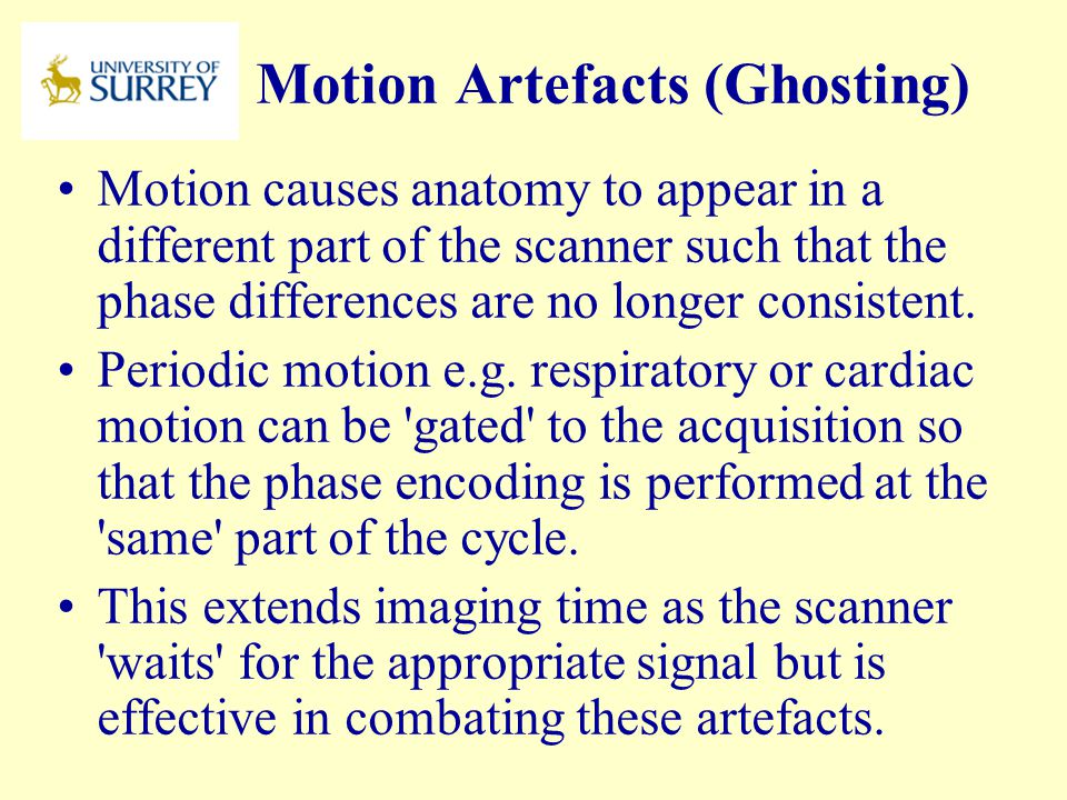 Motion Artefacts (Ghosting)