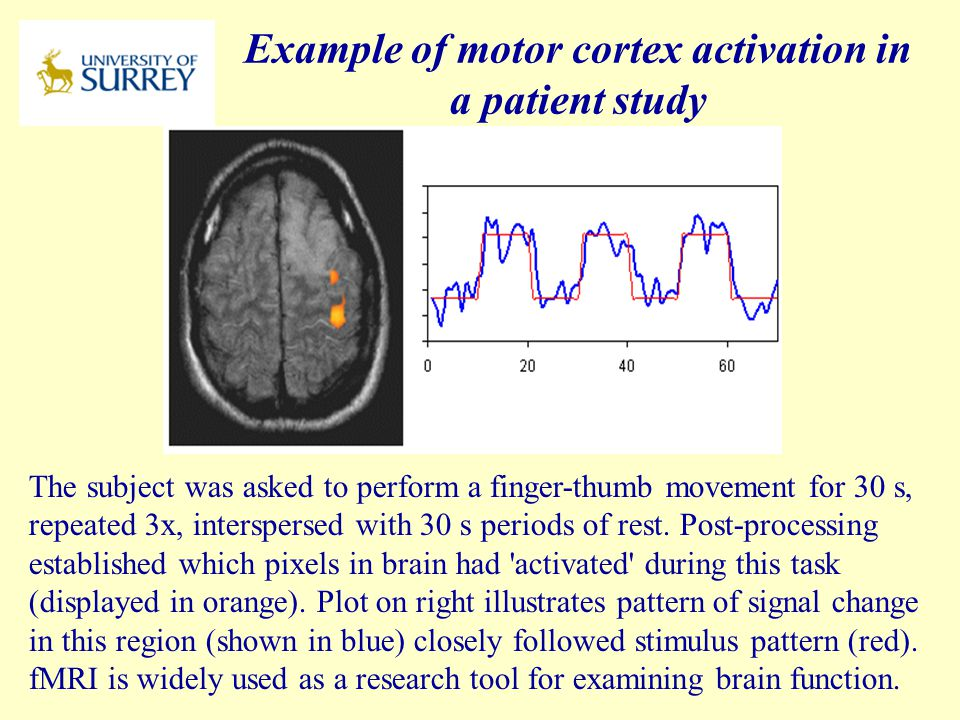 Example of motor cortex activation in a patient study