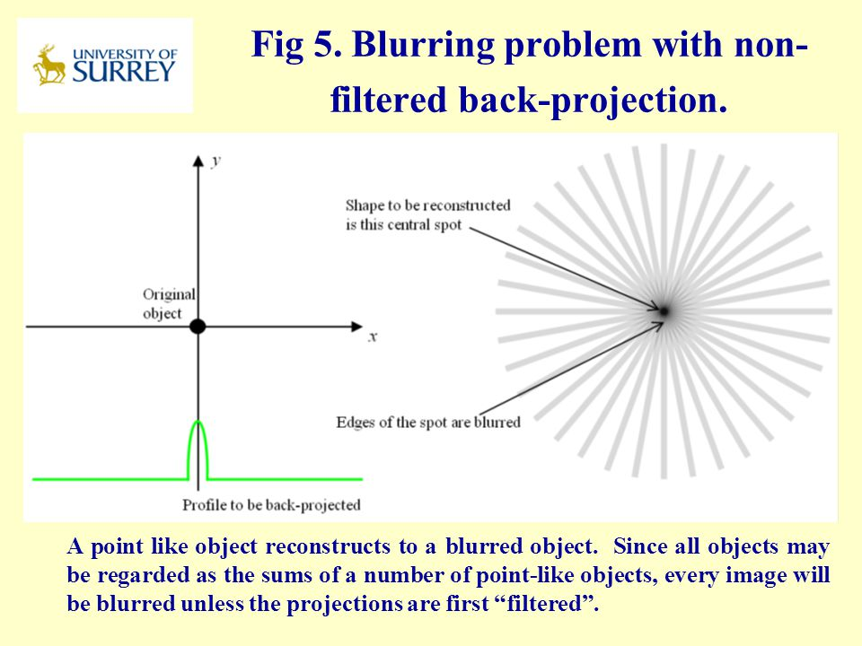 Fig 5. Blurring problem with non-filtered back-projection.