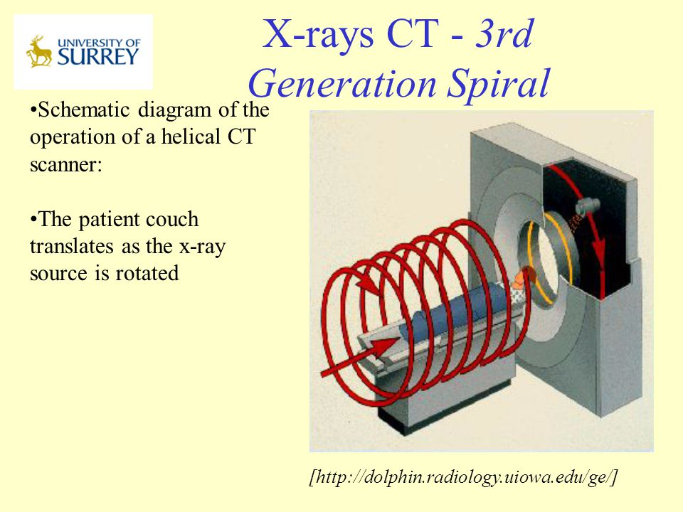 X-rays CT - 3rd Generation Spiral