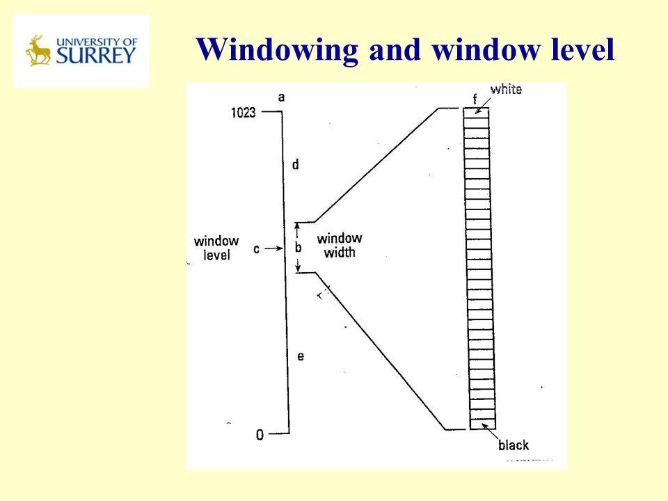 Windowing and window level