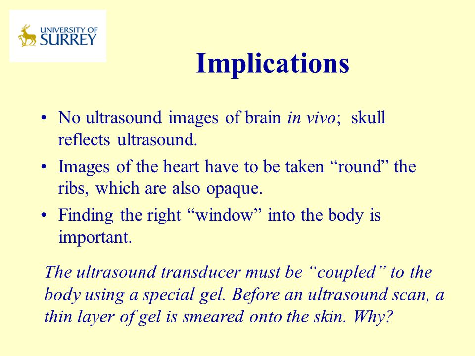 PH3-MI April 17, 2017. Implications. No ultrasound images of brain in vivo; skull reflects ultrasound.
