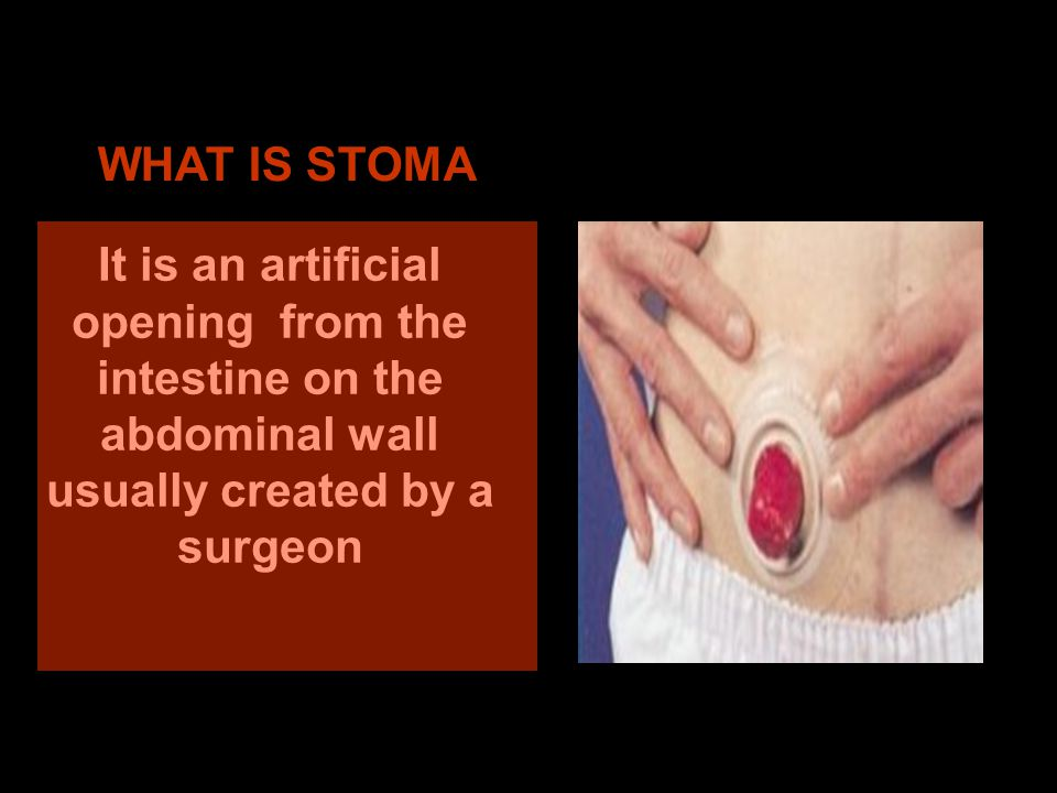 Colostomy Ppt Video Online Download