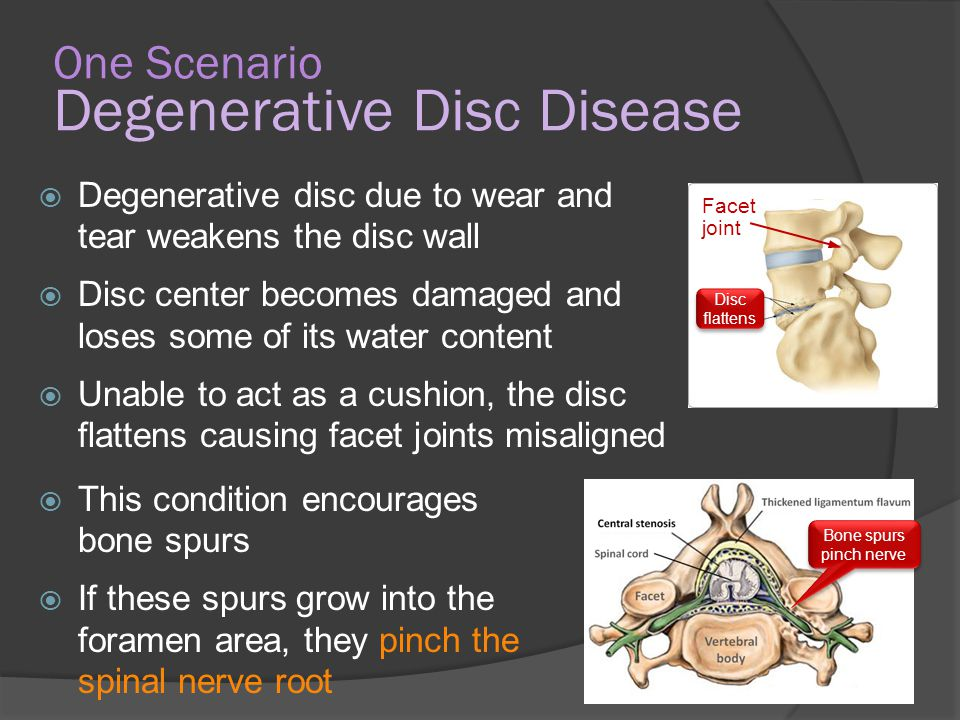 degenerative diseases and their effects Degenerative disease is the result of a continuous process based on degenerative cell changes degenerative diseases are often contrasted with infectious diseases.
