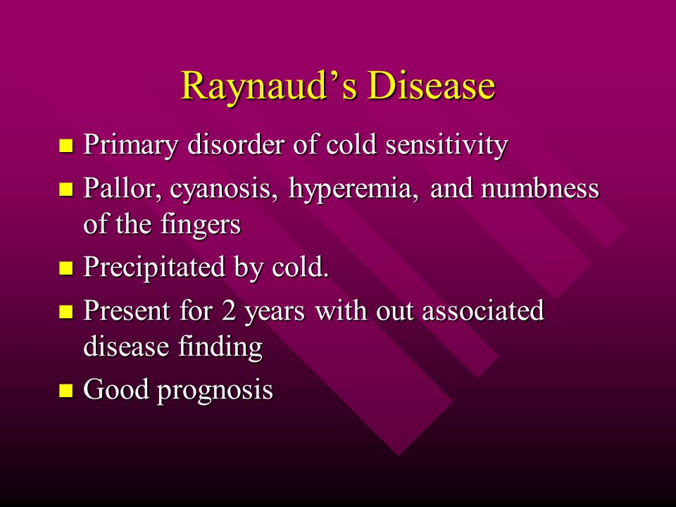 Raynaud's Disease Primary disorder of cold sensitivity