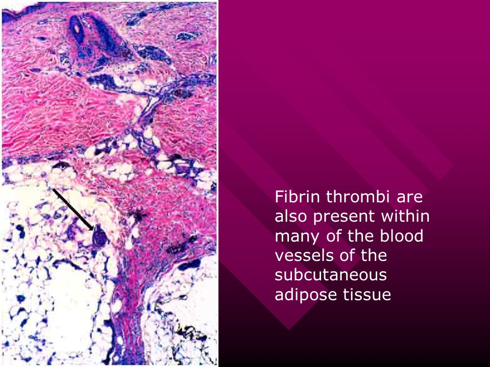 Fibrin thrombi are also present within many of the blood vessels of the subcutaneous adipose tissue