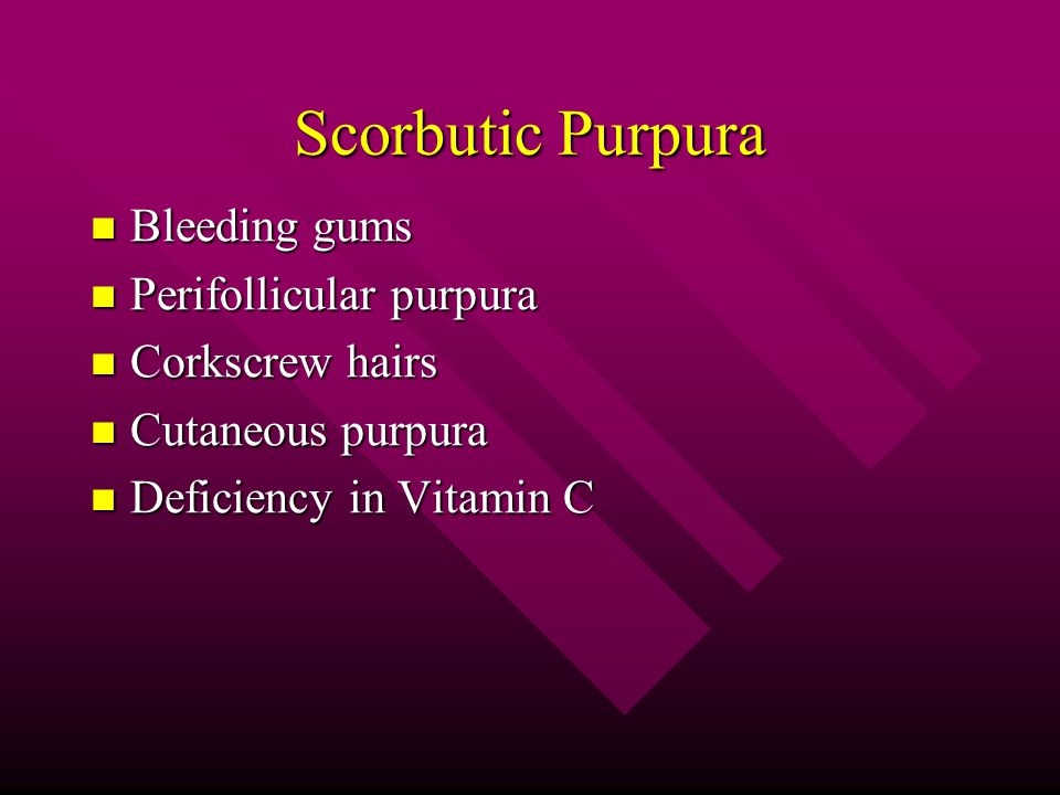 Scorbutic Purpura Bleeding gums Perifollicular purpura Corkscrew hairs
