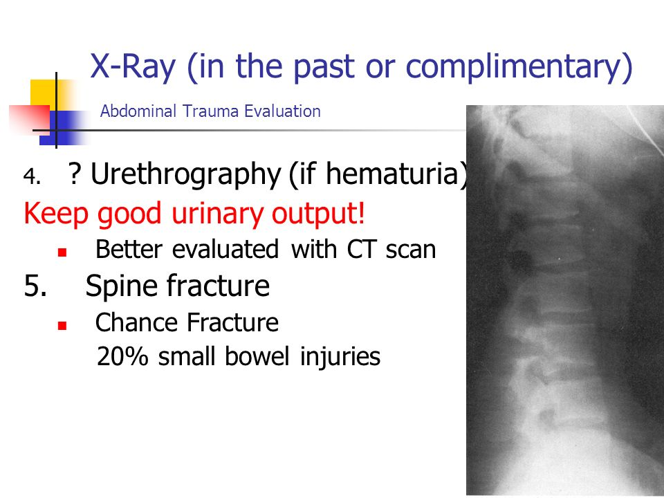 X-Ray (in the past or complimentary) Abdominal Trauma Evaluation